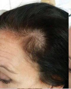 Scalp micropigmentation for women