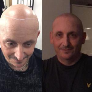 scalp micropigmentation before and after images