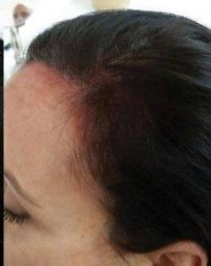 Scalp micropigmentation for women results