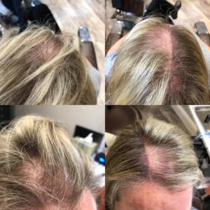 Scalp micropigmentation for women before and after photos